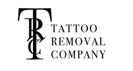 Laser Tattoo Removal Company Christchurch